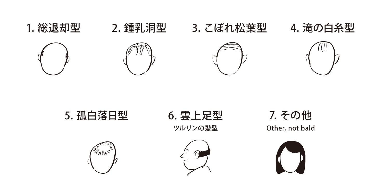 type of baldness